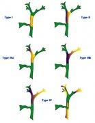 黄疸引流与梗阻类型和疗效
