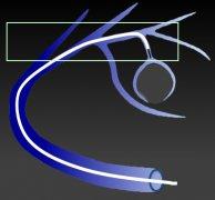 微导管的特性:柔韧性