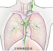 肺灌注综合征