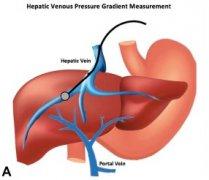 HVPG(肝静脉压力梯度)